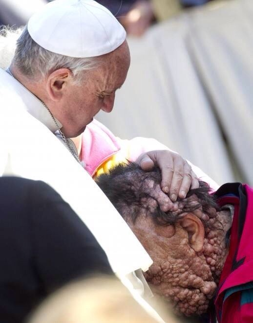 Pope Francis embraces horribly disfigured man
