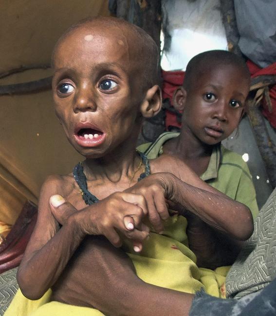 Ugandan Famine Victim
