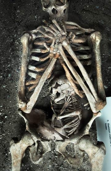 A Pregnant Corpse