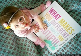 Tara McCallan wants her little girl to know that different is beautiful.2