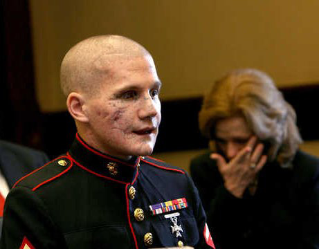 The beautiful face of courage: Lance Cpl. William Kyle Carpenter USMC