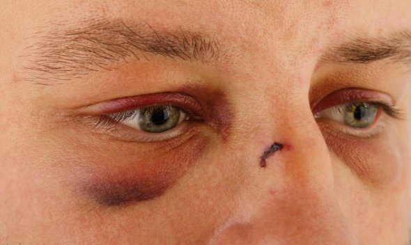 domestic-violence-male_black-eyes_molodec-shutterstock