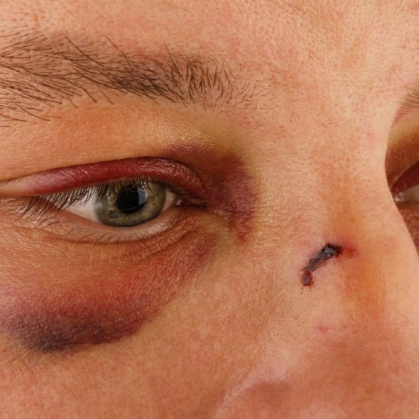 domestic-violence-male_black-eyes_molodec-shutterstock