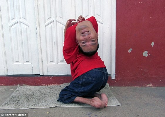 Man born with upside-down head defies doctors and becomes motivational speaker